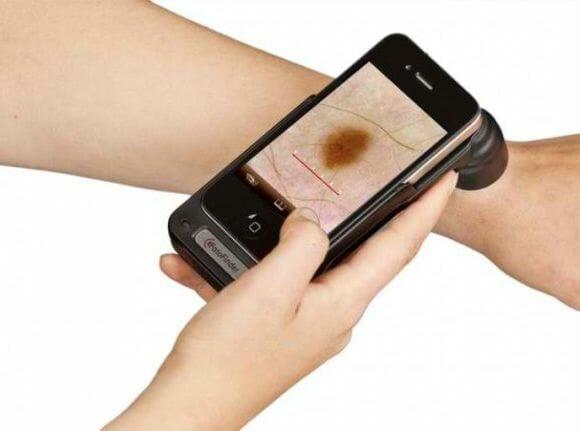 Acessório e App para iPhone para dermatologistas