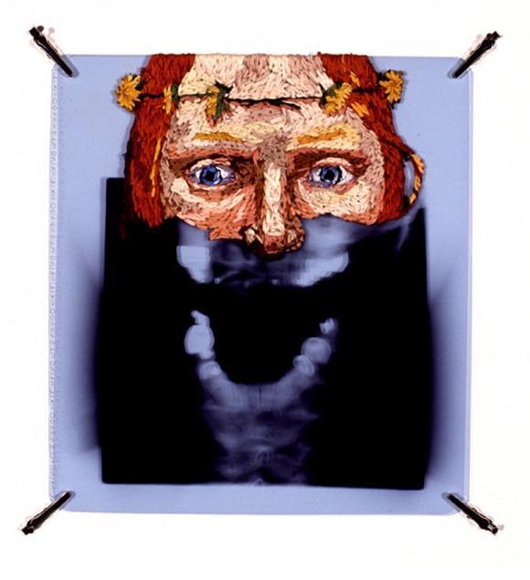 Os raios x bordados de Matthew Cox.