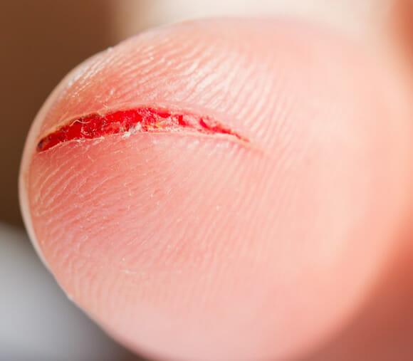 Novo material assemelha-se à feridas humanas - Imagem ilustrativa