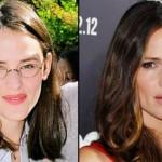 Celebridades antes e depois da fama