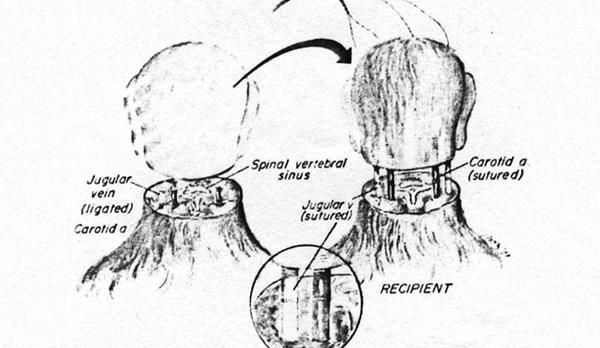 transplante-cabeca-agora-possivel