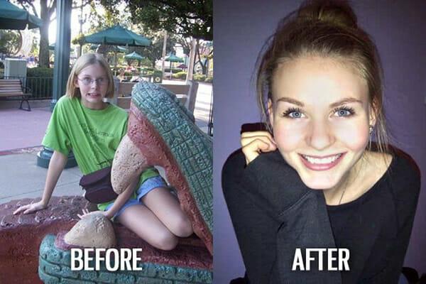 Patinhos feios que viraram cisnes: Antes e depois mostra as transformações incríveis de 53 pessoas