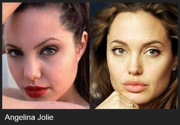 22 Celebridades antes e depois de cirurgias plásticas
