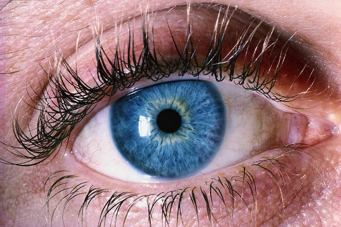 Cores de Olhos Raras