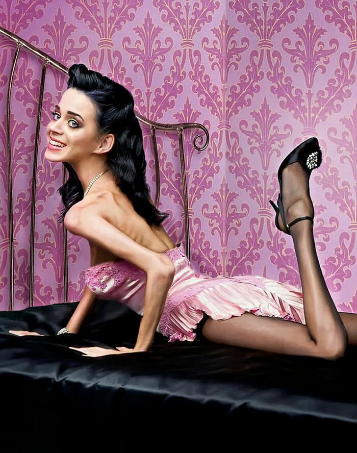celebridades-anorexicas_5