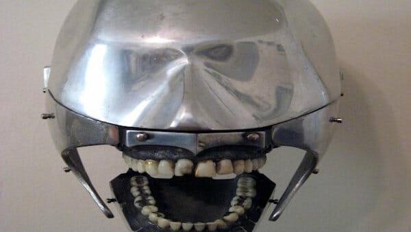 aparelhos-dentistas-antigamente_1