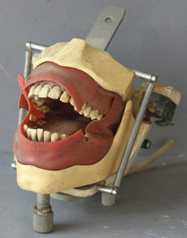 aparelhos-dentistas-antigamente_17