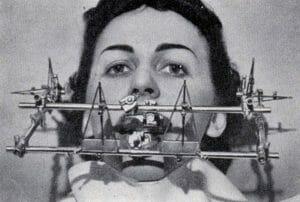 19 Aparelhos Usados Por Dentistas No Passado Que Causam Pânico Só de Ver