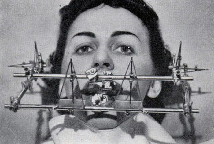 aparelhos-dentistas-antigamente_2