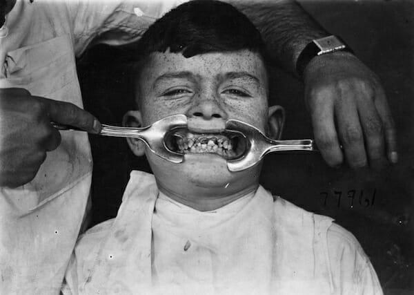 aparelhos-dentistas-antigamente_7