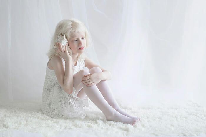 beleza-hipnotizante-albinos_10