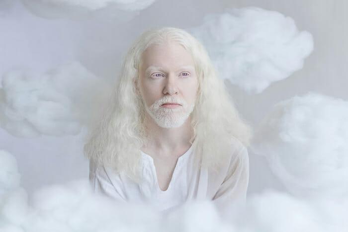 beleza-hipnotizante-albinos_2