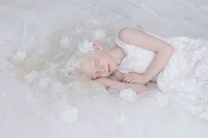 beleza-hipnotizante-albinos_3