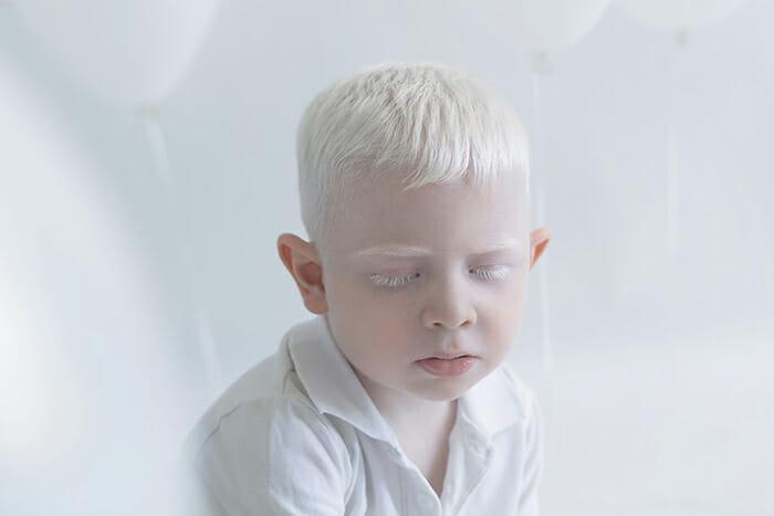 beleza-hipnotizante-albinos_4