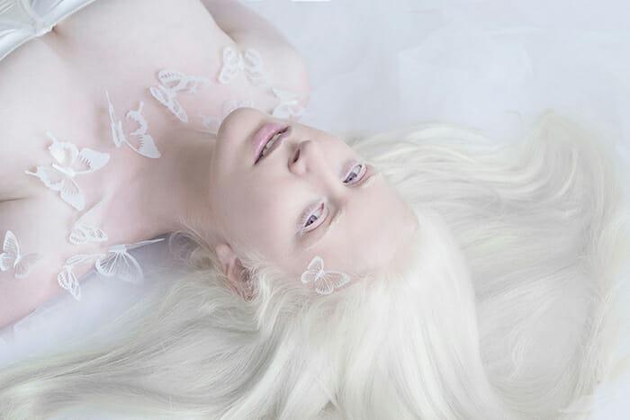 beleza-hipnotizante-albinos_6