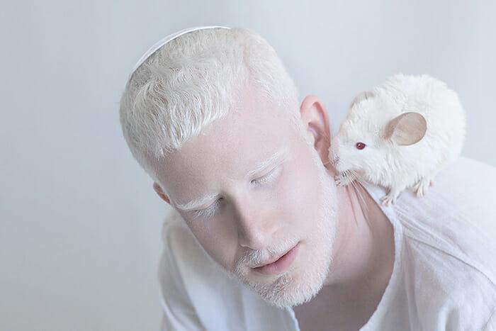 beleza-hipnotizante-albinos_7