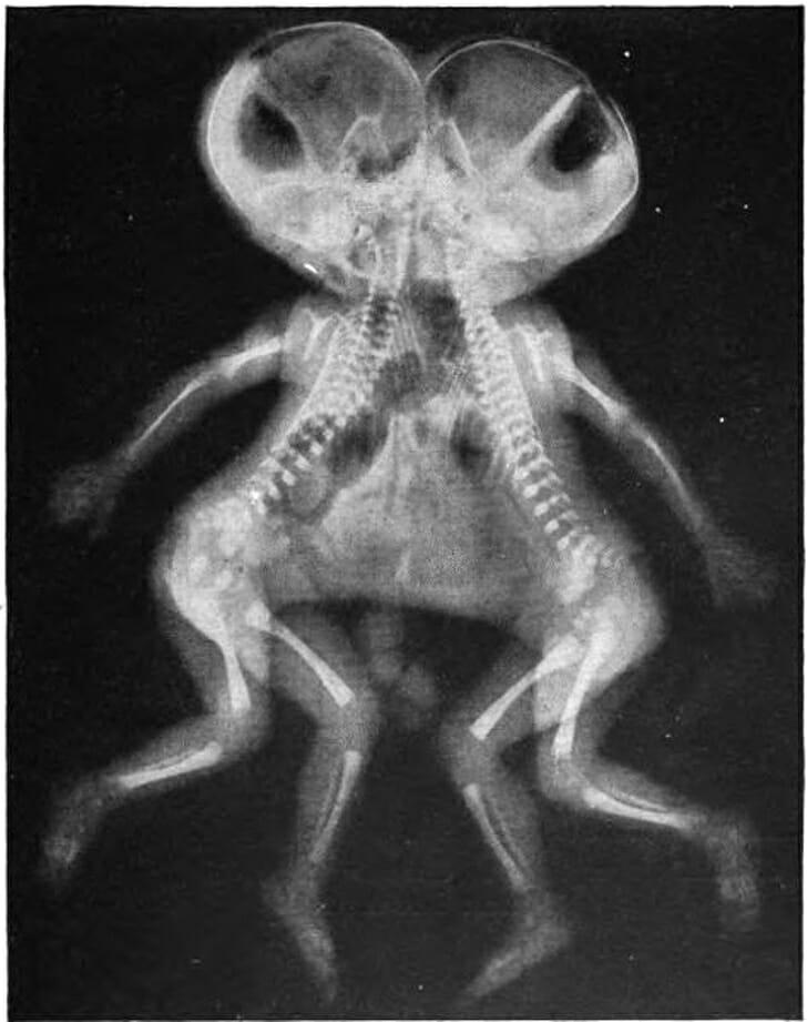 19 Imagens Estranhas e Interessantes de Raios X